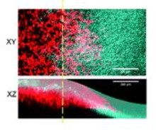 Dynamics of 3d Carcinoma Cell Invasion